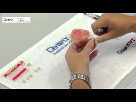 Eclipse - Baseplate preparation and teeth set-up | Dentsply Sirona