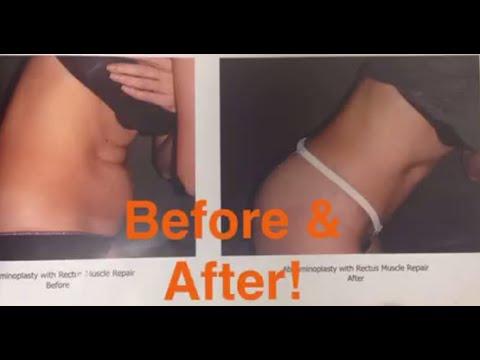 Shoulder Examination - OrthopaedicsKaynak: YouTube · Süre: 9 dakika32 saniye
