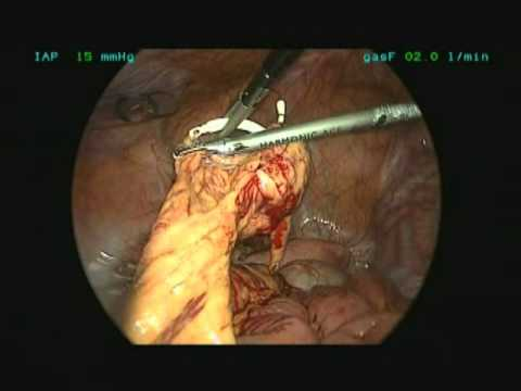 Laparoscopic Removal of a Lost IUD