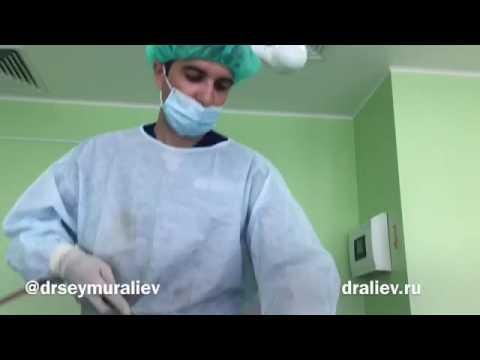 Лучшие хирурги по ринопластике в Москве – рейтинг и отзывы
