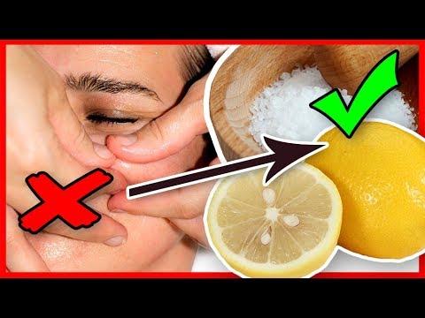 Pickel loswerden und mitesser entfernen mit zitrone salz for Trauermucken loswerden mit chemie
