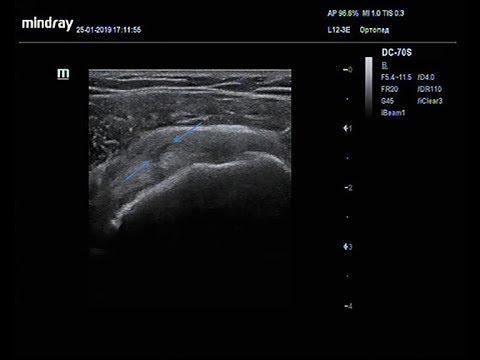 Неполный разрыв сухожилия надостной мышцы, теносиновит длинной головки бицепса плеча.