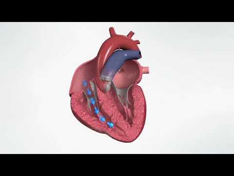 Inside Healthy Heart