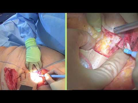 Wow! Big Tummy Tuck: Live Streaming Plastic Surgery: Dr Michael  Brown