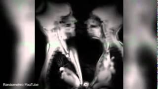 Вот так выглядит секс, если смотреть через МРТ