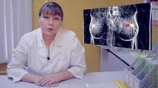 Как лечить рак груди? Говорит ЭКСПЕРТ.