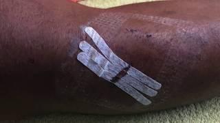 galeno lesão