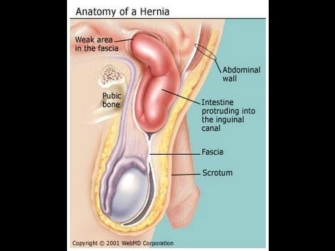 Medical Physiology (Organ System) Direct & Indirect Hernia - YouTube