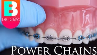 [BRACES EXPLAINED] Power Chains