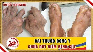 Bệnh Gout nên điều trị bằng đông y hay tây y,  Làm thế nào hết bệnh Gout | tin tức y tế 24h