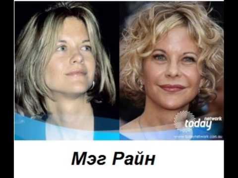 Звёзды до и после пластики - Stars Before And After Plastic Surgery