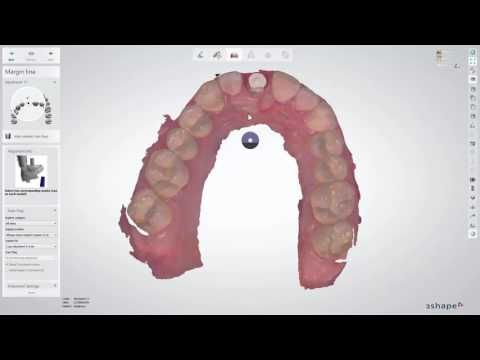 3Shape Dental System - How to Swap Scan Flags