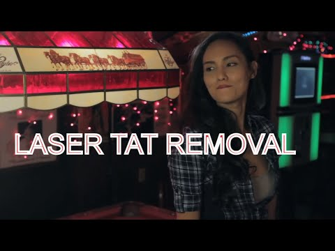 Dr. Herbich - Laser Tattoo Removal