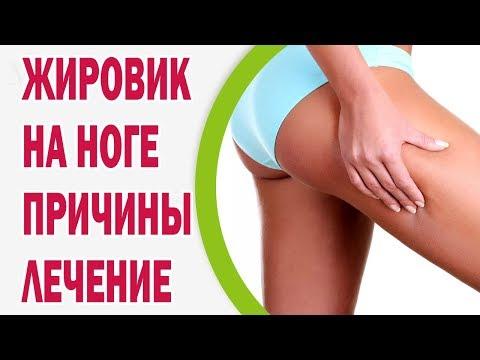 Жировик на ноге: как выглядит, причины, лечение