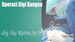 Cabut Gigi Bungsu