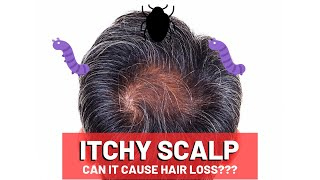 In this video we'll look at the 5 main reasons behind an itchy scalp, how to solve it, it can cause hair loss, and stop so you regrow your ...