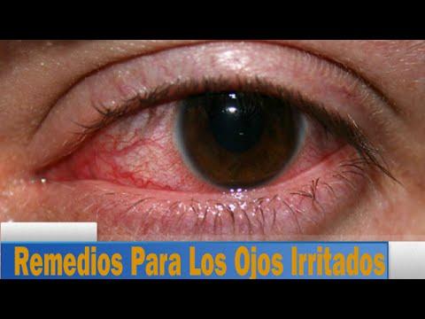 Remedio Casero Para Los Ojos Irritados: Cuatro Remedios Caseros Para Los Ojos Irritados