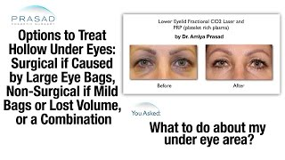 Why Puffy Eye Bags Can also Cause Hollow Eyes, and Treatment for Both Problems