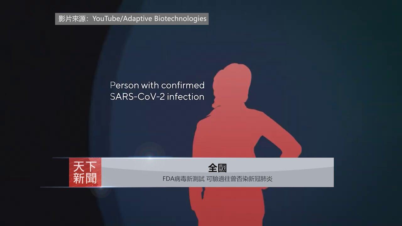 【全國】: FDA病毒新測試 可驗過往曾否染新冠肺炎
