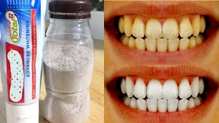 Magical Teeth Whitening Remedy, Teeth Whitening In 2 Minutes at home Urdu Hindi