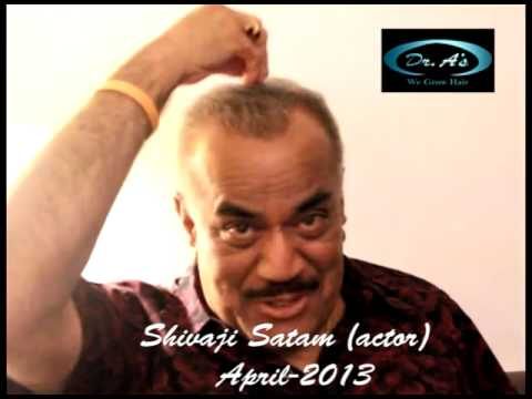 Shivaji Satam (ACP Pradyuman)After video at 4 months Hair Transplant- Dr. A's Clinic