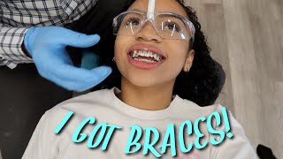 Come With Me To Get Braces!!!
