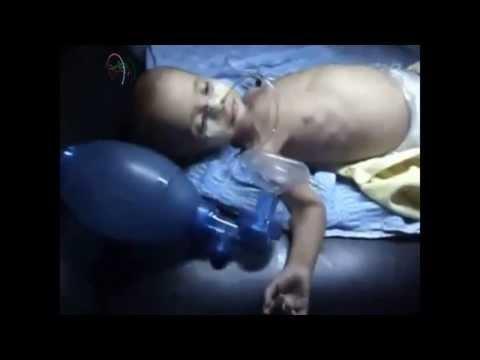 SNN | Syria | Damascus Rural | Regime Responsible For Starving Children | Sept 30, 2013 | 18+ ONLY