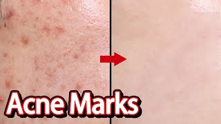 How to remove Acne Marks, Home…