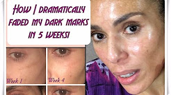 How I Dramatically Faded My Dark Marks In 5 Weeks!