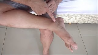 Nos nervos pés lesão dos