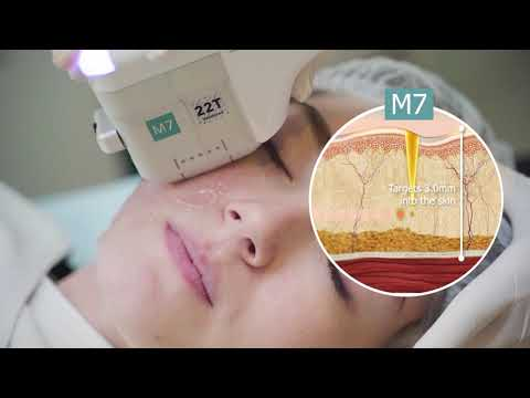 Doublo Gold HIFU at Cambridge Medical Group by Dr Lee Mun Heng