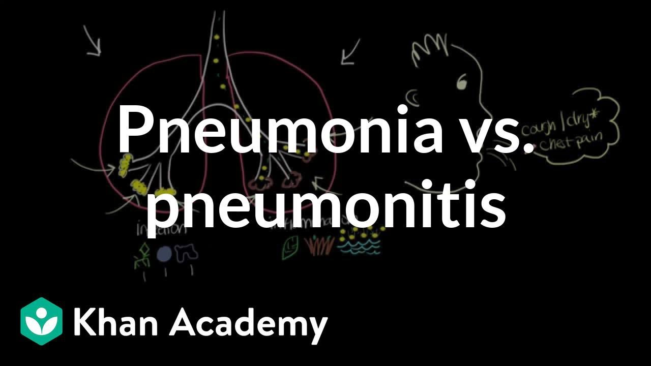Pneumonia vs  pneumonitis (video) | Khan Academy