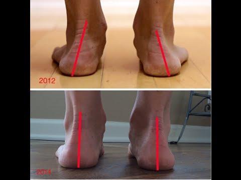 Minimalist Running Shoes - Dr. Nick Campitelli