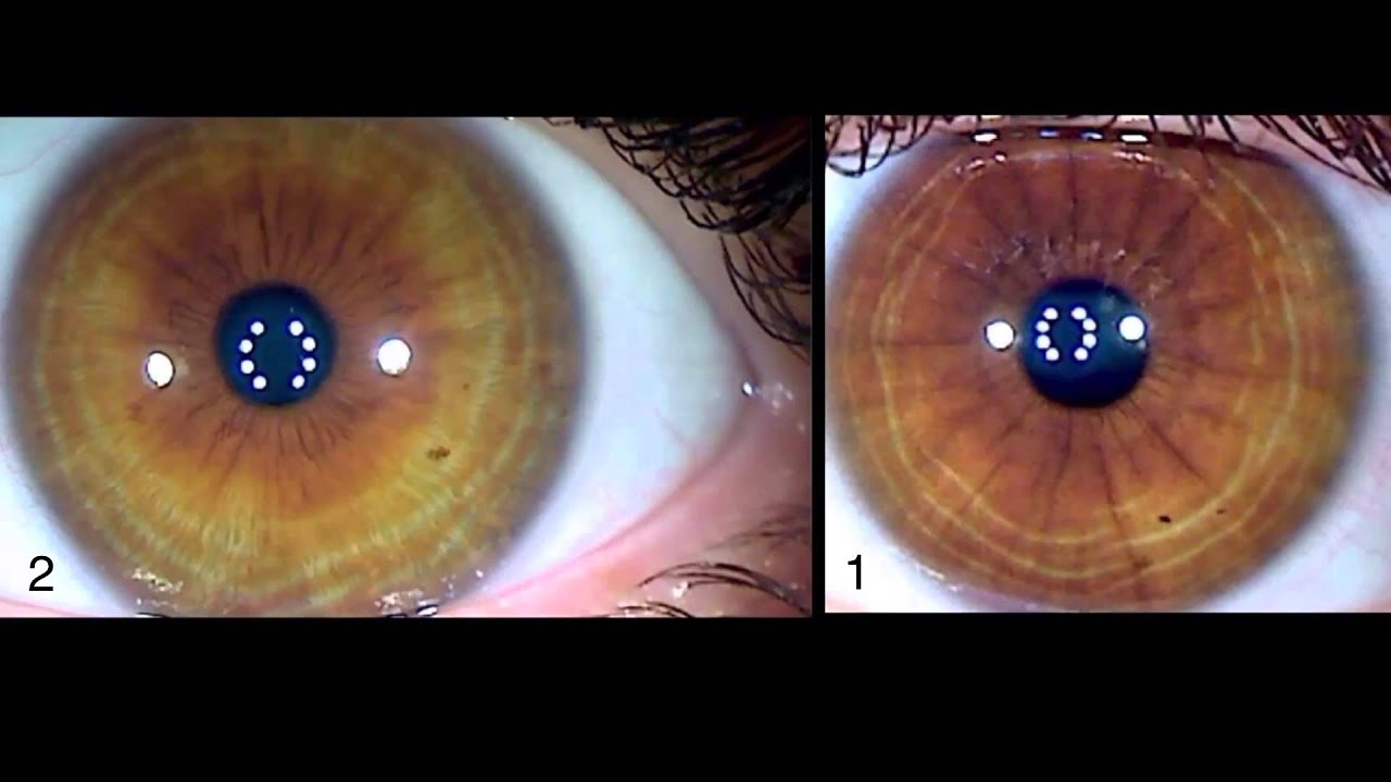 Iridology Eye Changes Before and After - YouTube