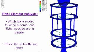 Finite Element Analysis of Ilizarov External Fixator