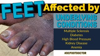 Feet Affected By Underlying Conditions: Diabetes, MS, Kidney Disease: Trimming Fungal Toenails