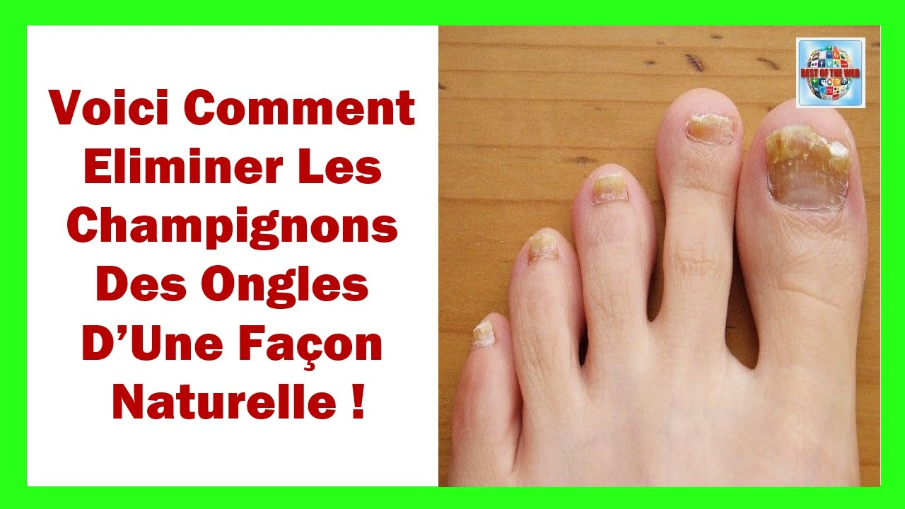 voici comment liminer les champignons des ongles d une fa on naturelle youtube. Black Bedroom Furniture Sets. Home Design Ideas