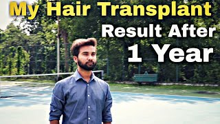How I Fought Against My Hair Loss || My Hair Transplant Result After 1 Year