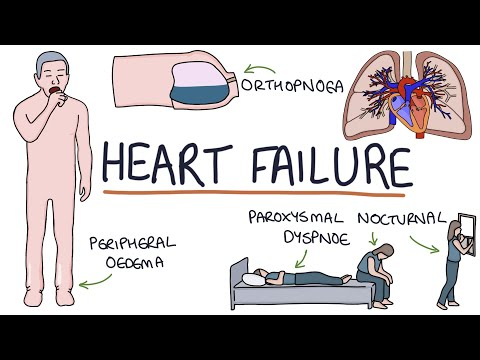 Understanding Heart Failure: Visual Explanation for Students