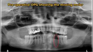 Implant placement -  Lingual to Mental Foramen