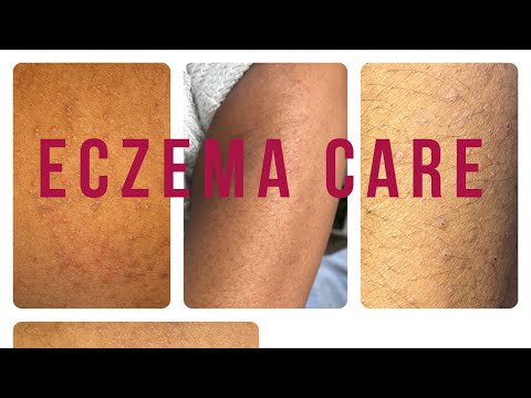 HOW TO TREAT #ECZEMA IN THE WINTER