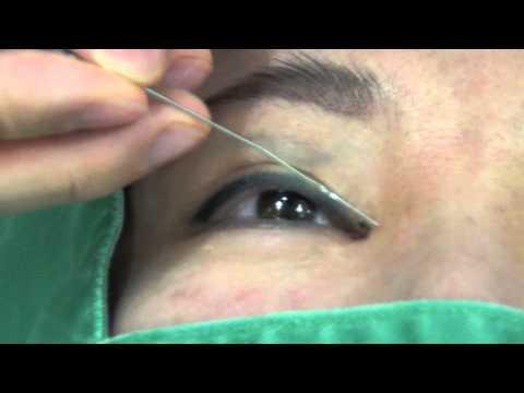 高須クリニック  目頭切開の修正手術  蒙古襞形成術  手術前のデザイン解説