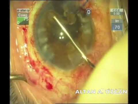 Managemant Of Iridodialisis And Traumatic Cataract; Phaco with Iridopexy and...