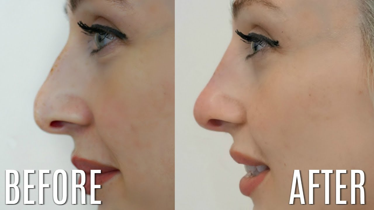 5 Minute Nose Job - Non-surgical Rhinoplasty | Carly Musleh