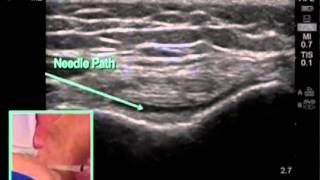 Порядок выполнения: инъекция в коленный сустав под контролем ультразвуковой визуализации