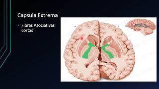 Blanca lesiones bilaterales sustancia de periventricular la
