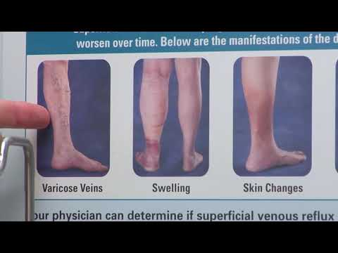 HealthBreak | Vein Program