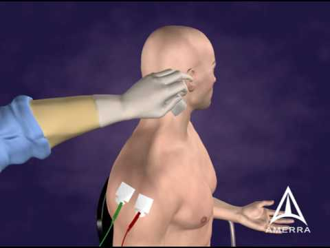 Botulinum Toxin B Injection Technique - 3D Medical Animation