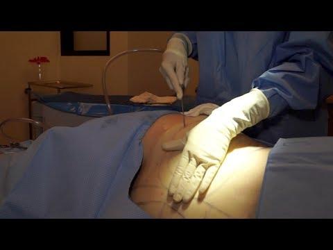 Buttock Augmentation Options by Westlake Dermatology