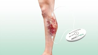 Accel-Heal - The science of wound healing